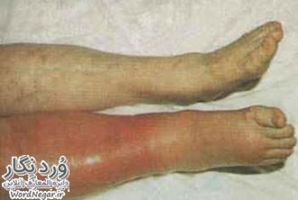 -نگار-2 ترمبو آمبولی سلامت مطالب سلامت ورزش درمانی   وردنگار