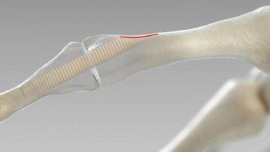 170928085149_1_900x600_1024-390x220 روش جدید ترمیم استخوان های شکسته با قطعاتی از جنس استخوان دانستنی های علمی دانش و فناوری سلامت مطالب سلامت   وردنگار