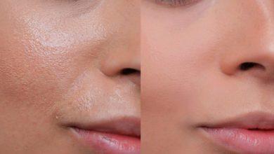 Oily-Skin-Product-Nation-1068x601-390x220 معرفی 5 درمان برای پوست چرب سلامت پوست و مو   وردنگار