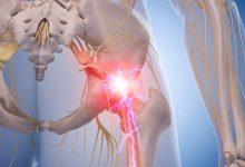 piriformis-syndrome-stretches-sciatica-e1492686836620-220x150 تمرین های ورزشی برای عصب باریکش یا تحت فشار در لگن یا ران تمرینات ورزشی و تناسب اندام سلامت ورزش ورزش درمانی   وردنگار