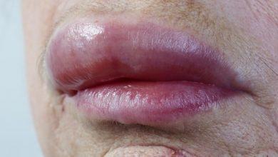 swollen-lips-390x220 تورم لب به چه علتی رخ می دهد؟ از عوامل تا راه های درمان سلامت مطالب سلامت   وردنگار