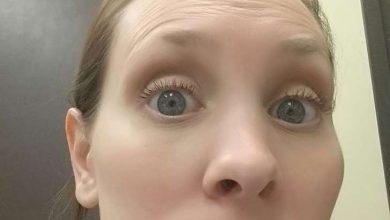 AAsRA7U-390x220 جوش های سرسیاه بزرگ می توانند به سرطان پوست منجر شوند آرایش صورت خانه مد سلامت مطالب سلامت   وردنگار