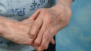 arthritic-hands-folded-390x220 آرتروز دست و راه های کاهش علائم آن سلامت مطالب سلامت ورزش درمانی   وردنگار