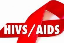 ek_HIV-AIDS-220x150 درمان ایدز یا اچ آی وی با خوردن یک قرص یک بار در هفته داروها و کاربردها دانستنی های جنسی سبک زندگی سلامت   وردنگار