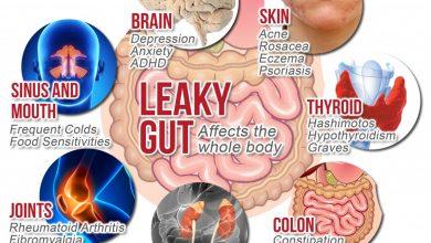 leakygut-150281827448nkg-390x220 چگونه باکتری های روده شما ممکن است شما را از سرطان محافظت کند سلامت مطالب سلامت   وردنگار