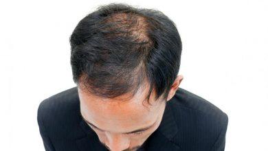 man-with-thinning-hair-390x220 7 راه برای داشتن موهای ضخیم تر و جلوگیری از ریزش مو با درمان های طبیعی خانه مد دسته بندی نشده سلامت پوست و مو   وردنگار