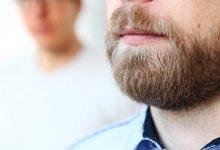 rish-220x150 کاشت ریش و سبیل   از فواید و عوارض تا نحوه انجام آرایش مو خانه مد   وردنگار